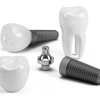 6 Amazing Benefits of Dental Implants