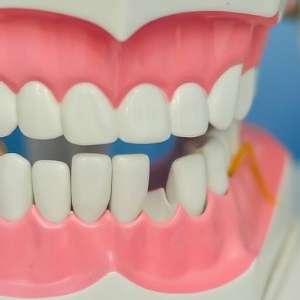 Dental Emergency in Toronto: 4 Common Emergencies to Look