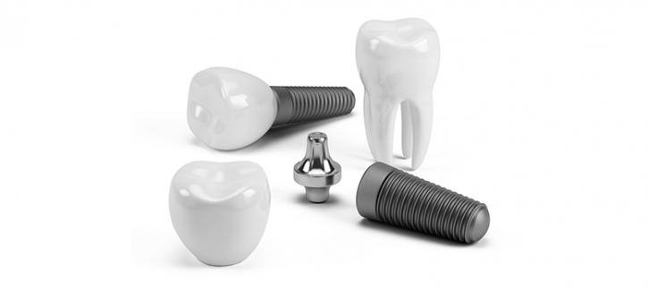Dental Implants in Toronto