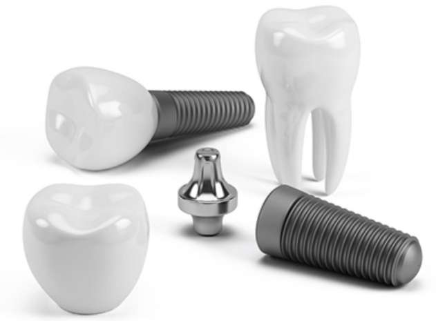 How To Take Care Of Your Dental Implants in Toronto