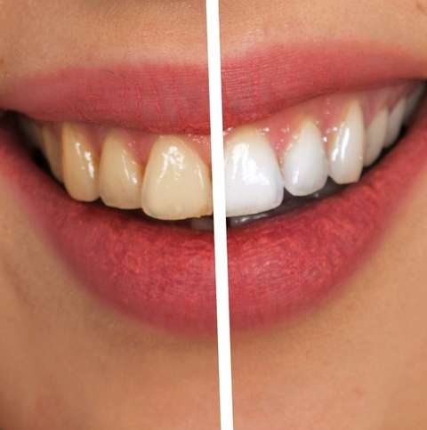 The Benefits of Getting Your Teeth Whitened by a Professional