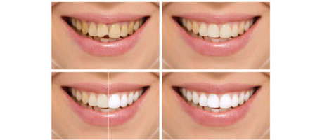 Top 3 Cosmetic Dentistry Options to Consider in Toronto